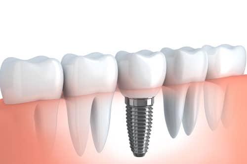 Teeth Implants in Shorewood IL