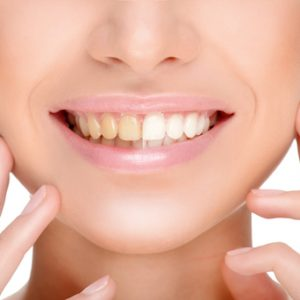 Professional Teeth Whitening in Shorewood Illinois