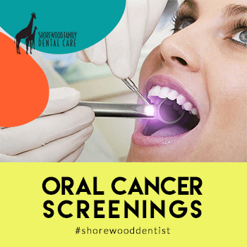 Oral Cancer Screenings Provided by Shorewood Family Dental Care