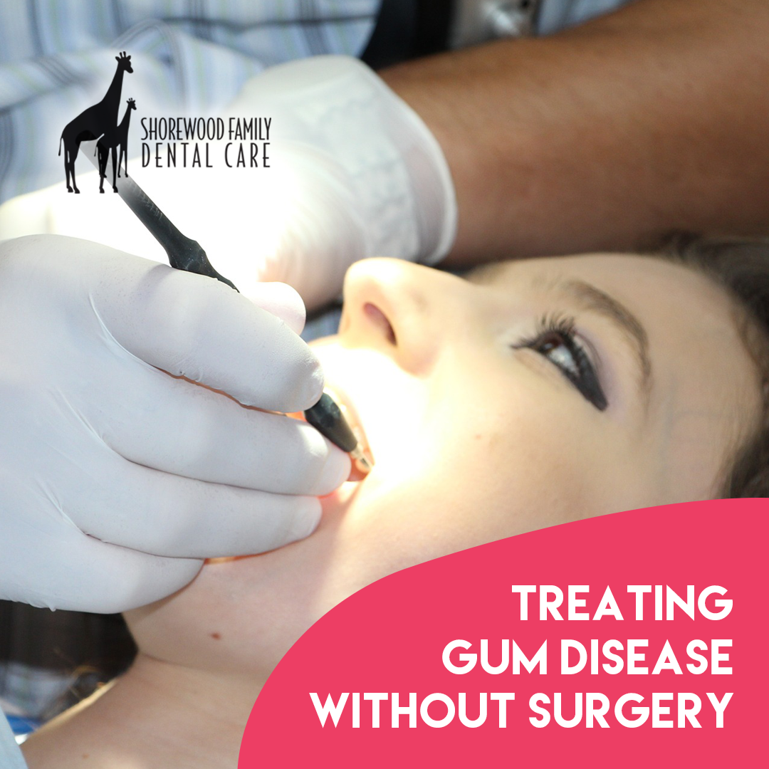 Treating Gum Disease without Surgery