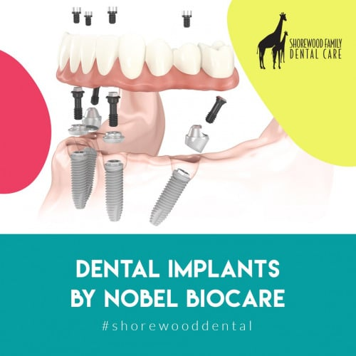 high quality types of dental implants and implant supported dentures