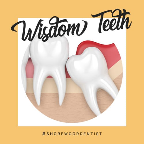 guide to wisdom tooth removal