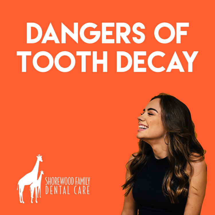 Risks and Dangers of Avoiding Cavities and Not Taking Care of Them