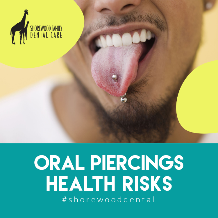 Oral Piercings and Oral Health